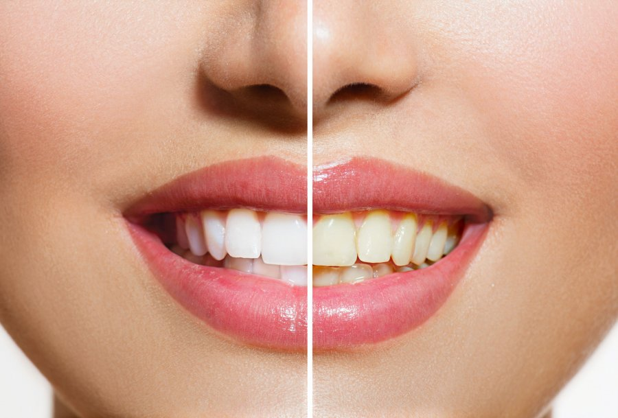 6 Ways To Naturally Whiten Your Teeth Without Damaging The Enamel