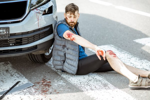 Injured man after the road accident
